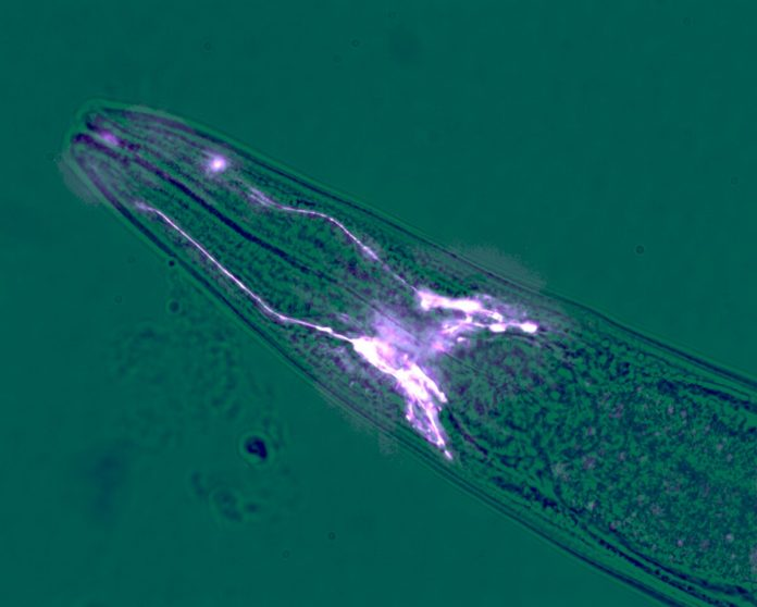 Brain cells protect muscles from wasting away – Phys.org